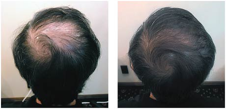 hair loss treatment tauranga before after